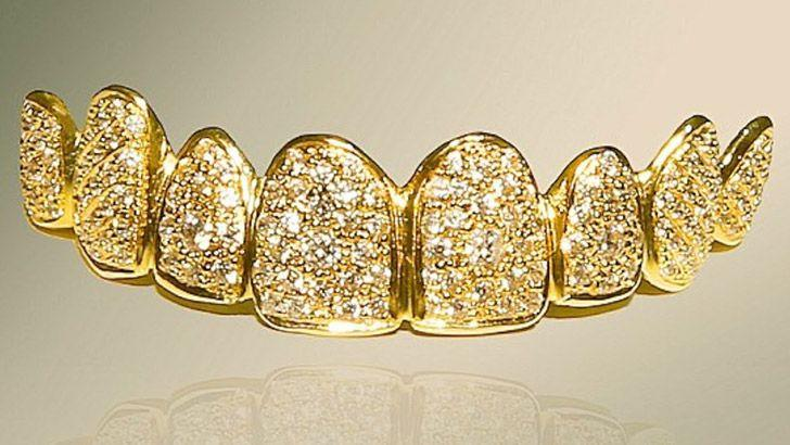 Diamond encrusted false teeth